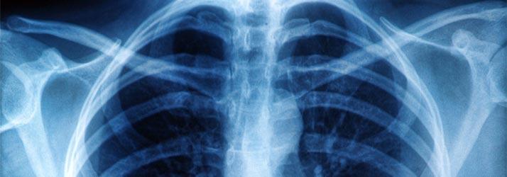 Chronic Pain New Providence NJ X-Rays Available